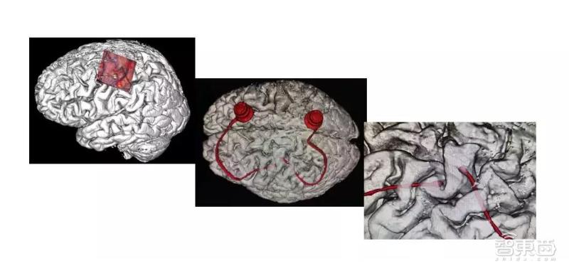 中国首例!大脑植入电极,高位截瘫病人用意念喝水